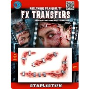 Medium Staplestein 3D FX Scar Transfer Pk 1