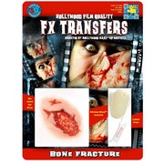 Medium Bone Fracture 3D FX Scar Transfer Pk 1